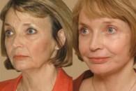 Хімічний пілінг обличчя