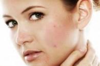 Як позбутися від прищів на обличчі