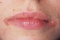 Як лікувати заїди в куточках рота