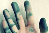 Як відмити зеленку з шкіри