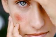 Червоні плями на обличчі