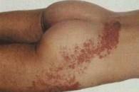 Симптоми оперізувального лишаю